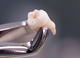 Metal clasps holding an extracted tooth